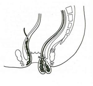 Emorroidectomia