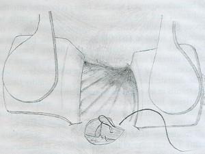 Anoplastica - Fase 2