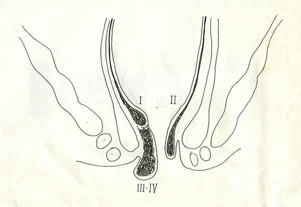 stadi-emorroidi